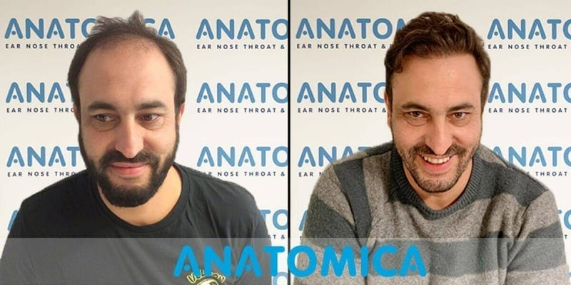 haartransplantatie-voor-en-na-1