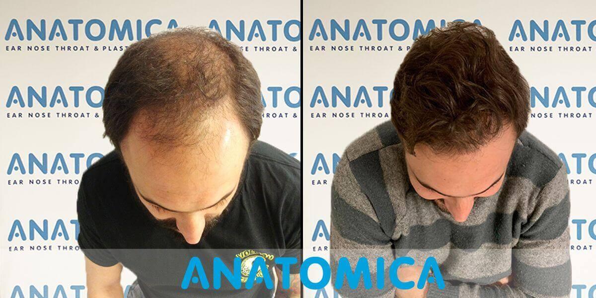 haartransplantatie-voor-en-na-2