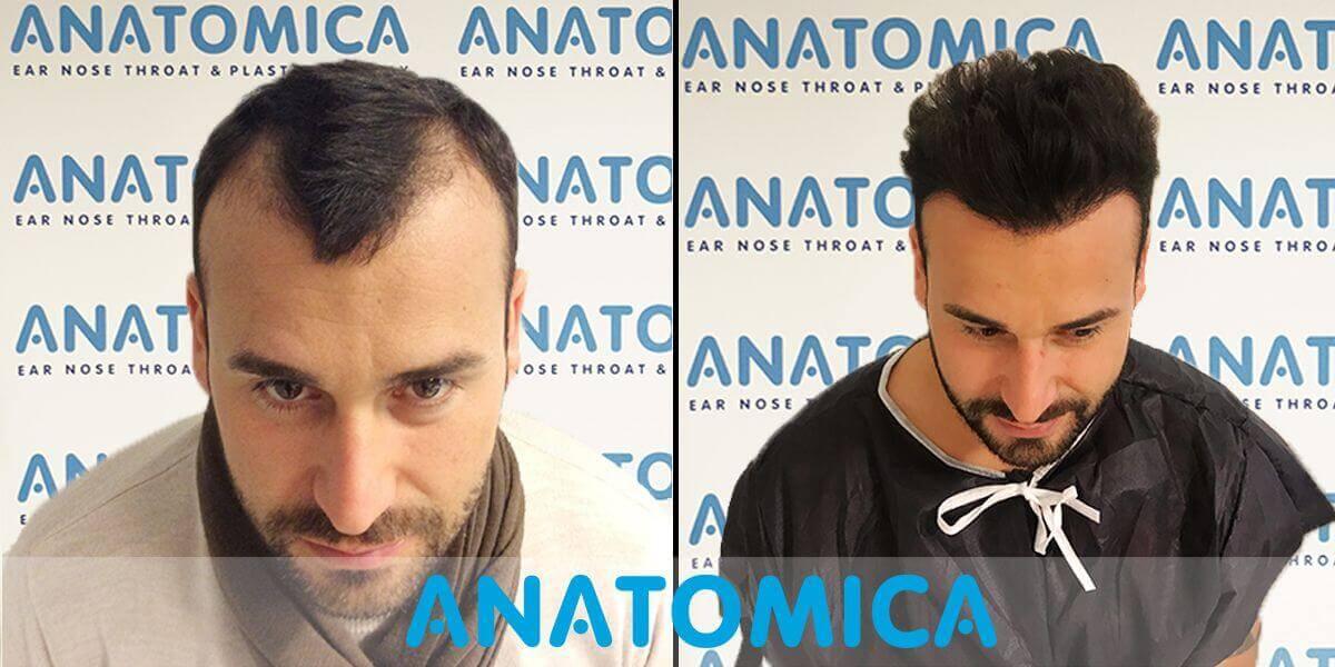 haartransplantatie-voor-en-na-3