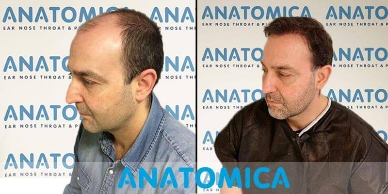 haartransplantatie-voor-en-na-5