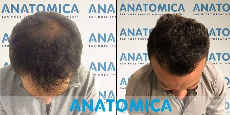 haartransplantatie-voor-en-na-6