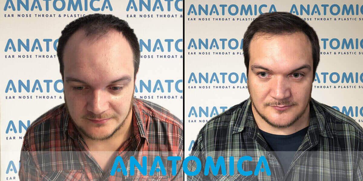 haartransplantatie-voor-en-na-7