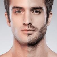 snor of baardtransplantatie - Haartransplantatie in Turkije